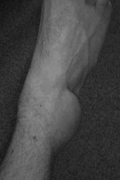 Fuß Bänderriss